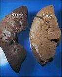 fatty-liver-disease-symptoms-1